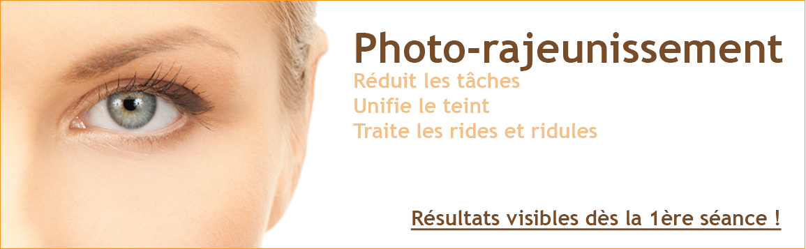 Photo rajeunissement - réduction de tâches
